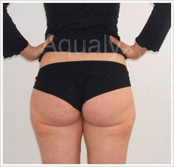 Aqualyx Non-Invasive Treatment After