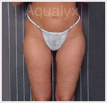Treatment Buttock Aqualyx Injection After