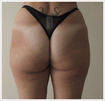 Buttock Fat Dissolving Treatment After