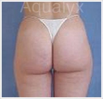 Aqualyx Fat dissolving Treatment After