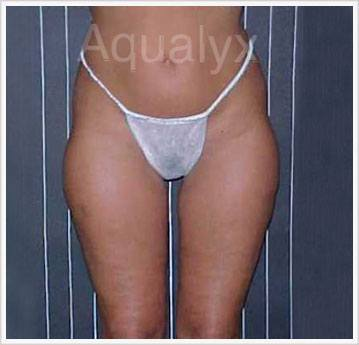 Treatment Buttock Aqualyx Injection Before