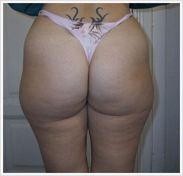 Buttock Fat Dissolving Treatment Before