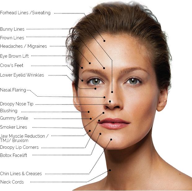 Botox London -Injection Treatment Areas