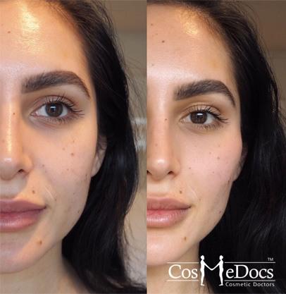 Cheek Enhancements Fillers before after treatment
