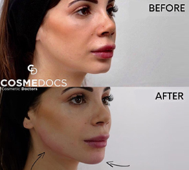 chin and jawline treatment with dermal filler