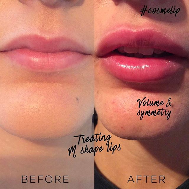 Lip Enhancement Treatment | Lip Fillers at Cosmedocs London