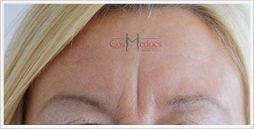Dermal Filler Treatment for Filler Frown Before