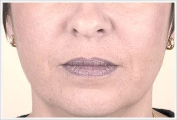 Nosolabial dermal Filler Treatment After