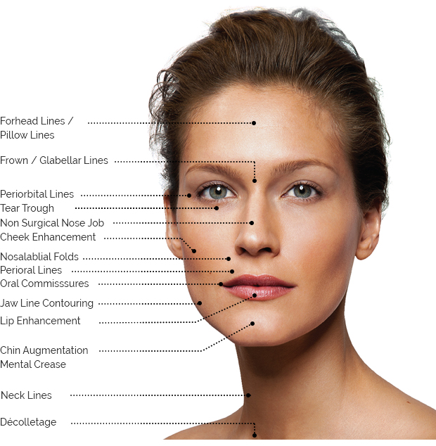 Fillers Treatment areas indication