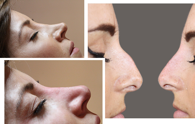 Fracture nose before after treatment