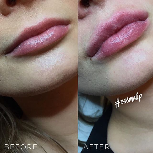 Lip Augmentation Treatment