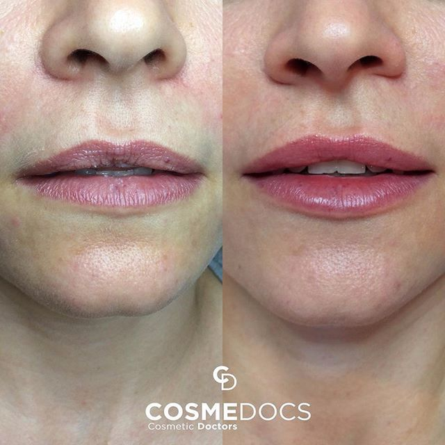 Lip enhancement with fillers