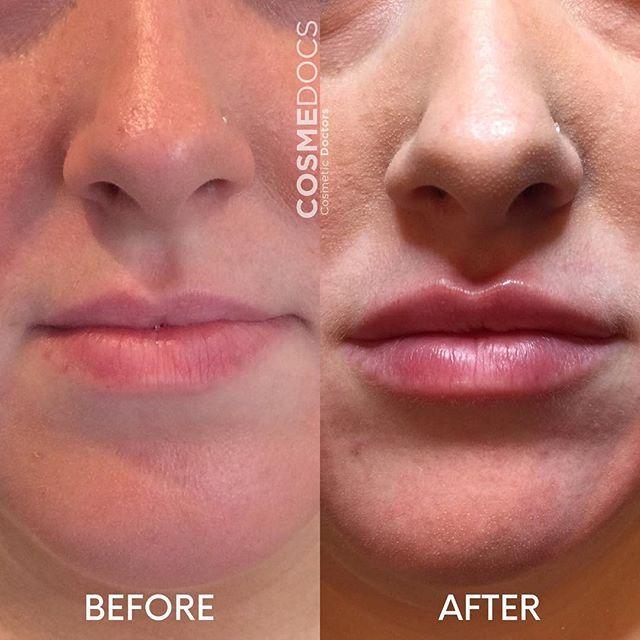 Non Surgical Lip line treatment