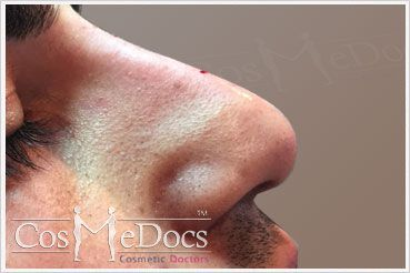 Nose Treatment After