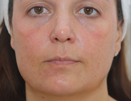 Facial Treatment with Harley Street Formulation - Intra Peel