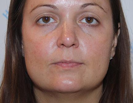 Facial Rejuvenation Treatment - Post Peel
