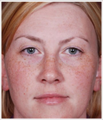 Pigmentation treatment with cosmeceuticals products before